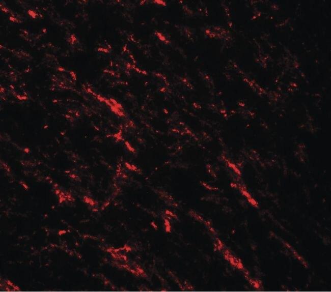 TIP60 Antibody (PA5-34548)