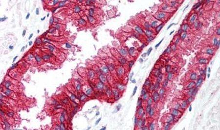 KCNN4 Antibody (PA5-33876)