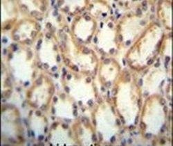 KCNT2 Antibody (PA5-23855)