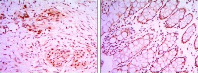 JMJD2A Antibody (MA5-15678) in Immunohistochemistry