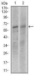 KEAP1 Antibody (MA5-17106) in Western Blot