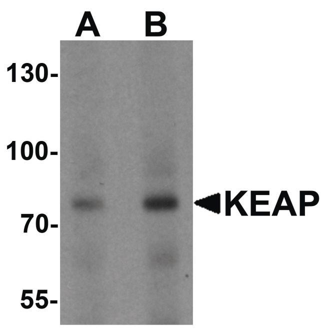 KEAP1 Antibody (PA5-34454) in Western Blot