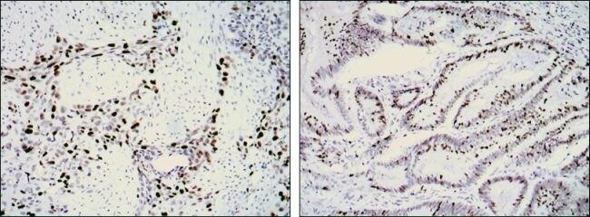 Ki-67 Antibody (MA5-15690) in Immunohistochemistry