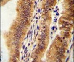 KIAA1609 Antibody (PA5-24016)