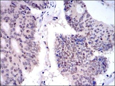 KID Antibody (MA5-15912) in Immunohistochemistry