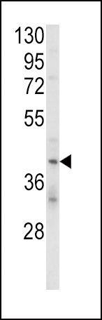 KIR2DL4 Antibody (PA5-26053) in Western Blot