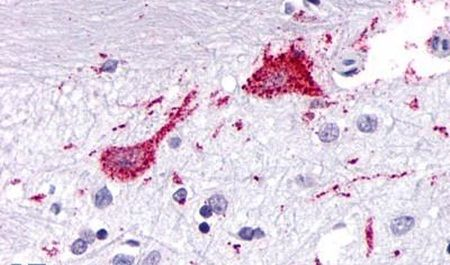 KISS1R Antibody (PA5-33878)