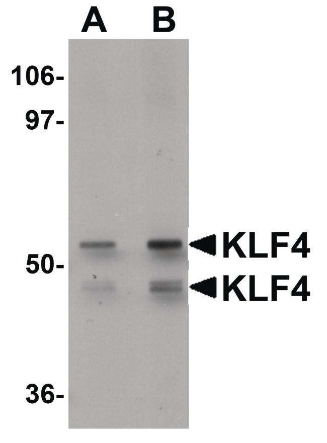 KLF4 Antibody (PA5-20897) in Western Blot