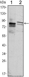 KLHL11 Antibody (MA5-15660) in Western Blot