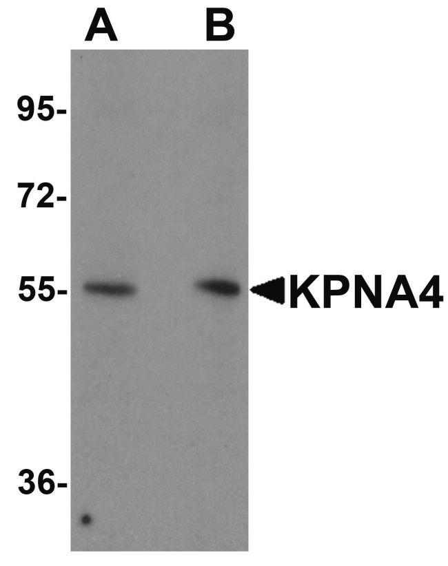 KPNA4 Antibody (PA5-21033) in Western Blot