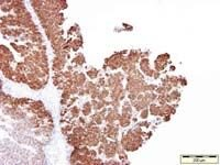 Cytokeratin 13 Antibody (MA1-35542) in Immunohistochemistry