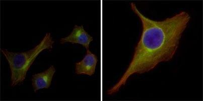 Cytokeratin 15 Antibody (MA5-15567)