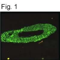 Cytokeratin 18 Antibody (MA1-06326) in Immunofluorescence