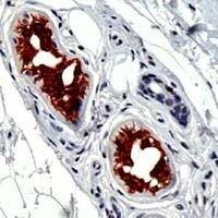 Cytokeratin 18 Antibody (MA1-39483)