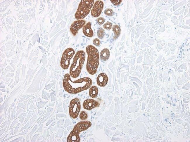Cytokeratin 20 Antibody (MA1-35556) in Immunohistochemistry