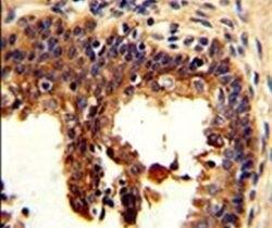 Cytokeratin 4 Antibody (PA5-13684)