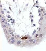 Phospho-p53 (Ser392) Antibody (MA1-19424) in Immunohistochemistry