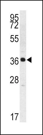 Kallikrein 2 Antibody (PA5-13342) in Western Blot