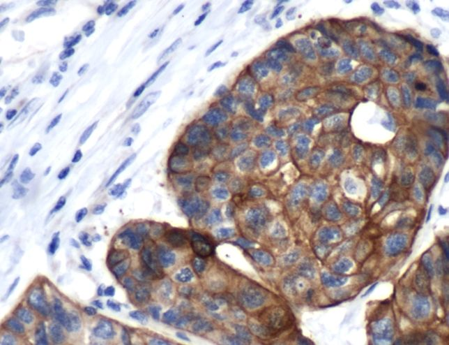 Cytokeratin 17 Antibody (PA5-32461)