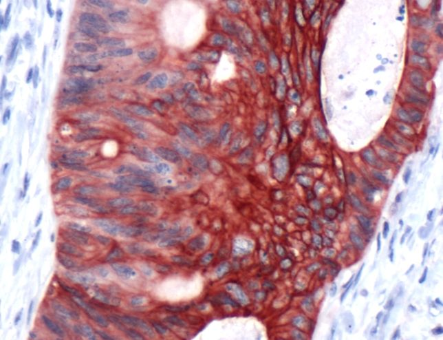 Cytokeratin 20 Antibody (PA5-32464) in Immunohistochemistry