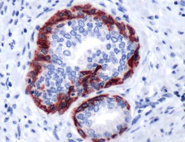 Cytokeratin 6C Antibody (PA5-32466) in Immunohistochemistry