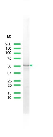 Cytokeratin 7 Antibody (PA5-32467) in Western Blot