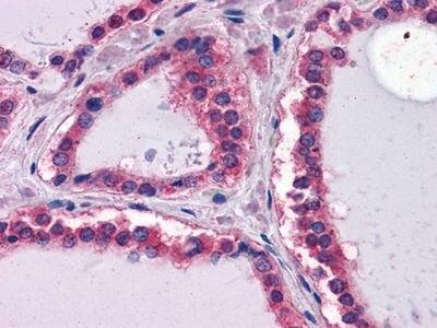 Laminin beta-1 Antibody (MA5-15467)