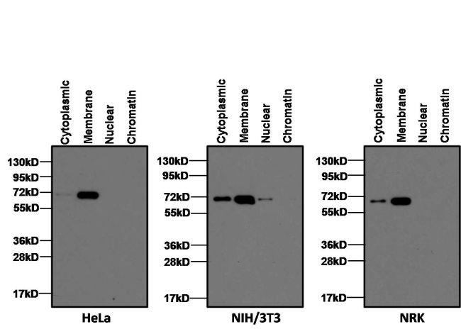 LAMP2 Antibody (PA1-655) in Western Blot