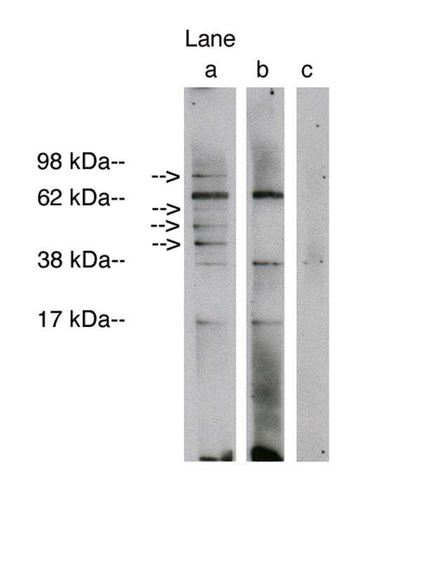 Lass1 Antibody (PA1-12918) in Western Blot