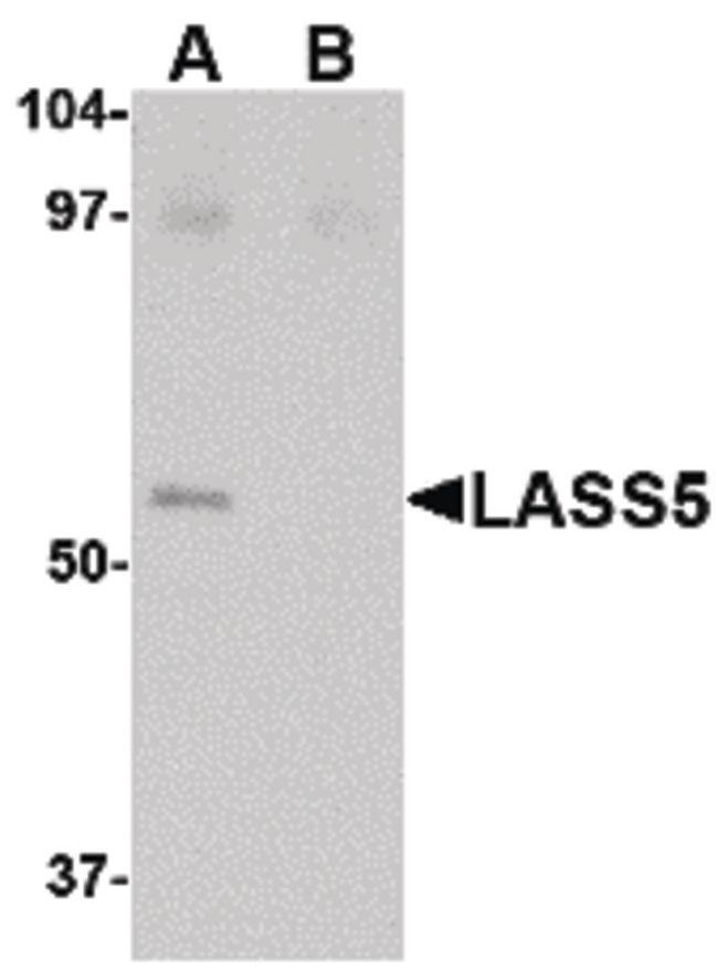 Lass5 Antibody (PA5-20569) in Western Blot