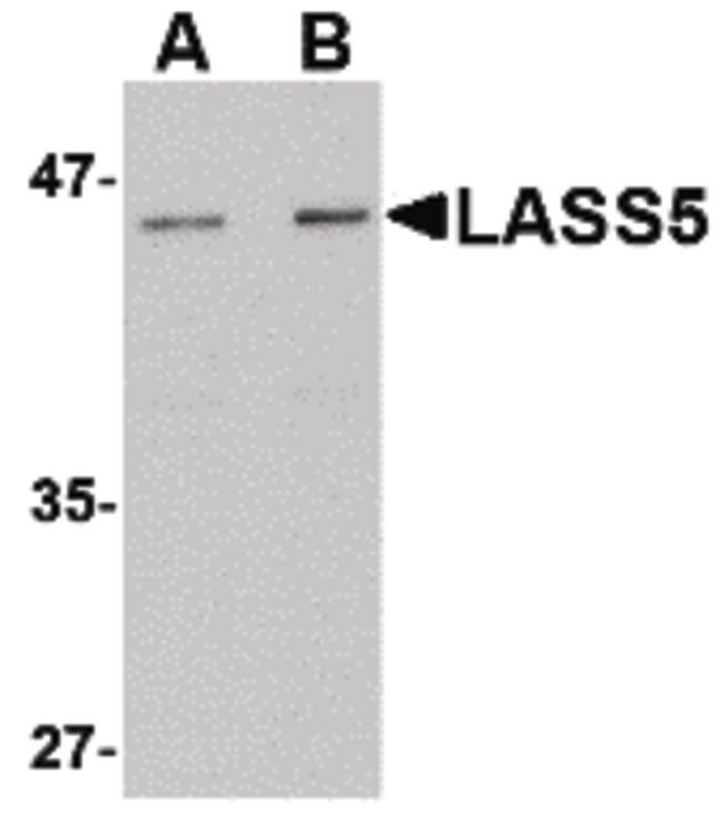 Lass5 Antibody (PA5-20570) in Western Blot