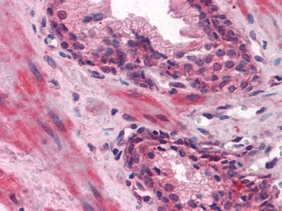 LCN1 Antibody (MA5-15501) in Immunohistochemistry