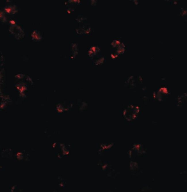 LEMD2 Antibody (PA5-34397) in Immunofluorescence