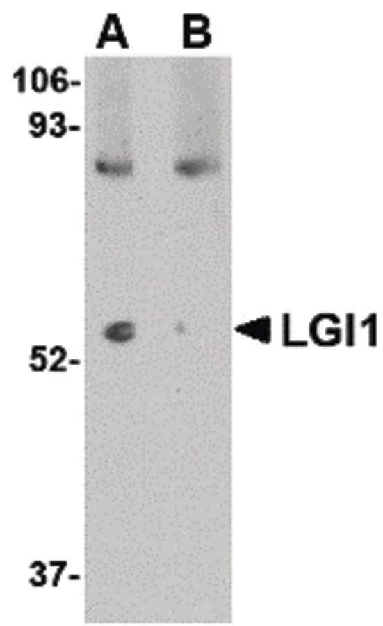 LGI1 Antibody (PA5-20506)