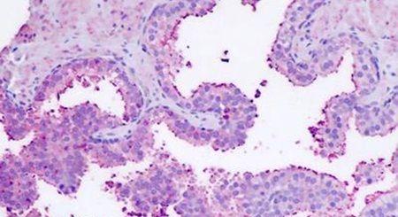 LGR7 Antibody (PA5-34169) in Immunohistochemistry (Paraffin)