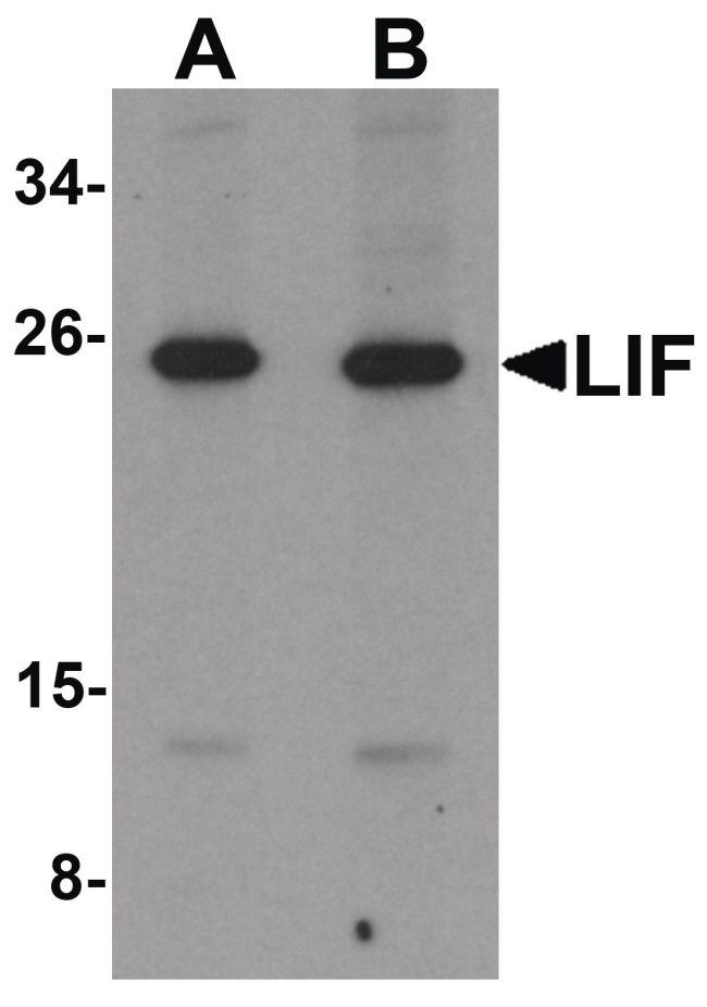 LIF Antibody (PA5-21122) in Western Blot