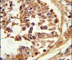 HSL Antibody (PA5-26383)