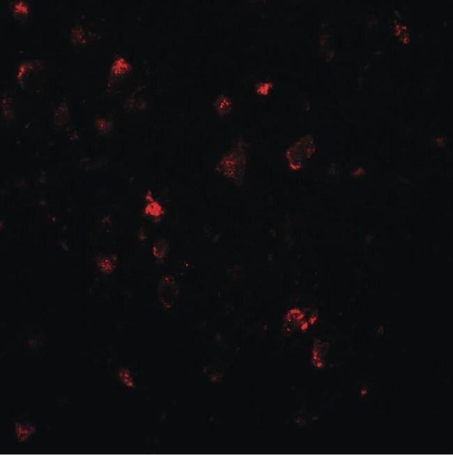 LMX1A Antibody (PA5-34470)