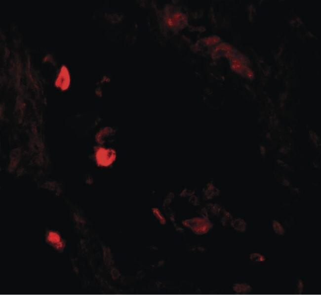 LNPEP Antibody (PA5-34458) in Immunofluorescence