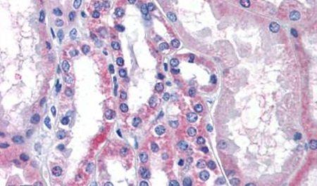 LPCAT1 Antibody (PA5-32905) in Immunohistochemistry (Paraffin)