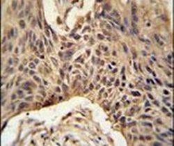 LPPR4 Antibody (PA5-24895)