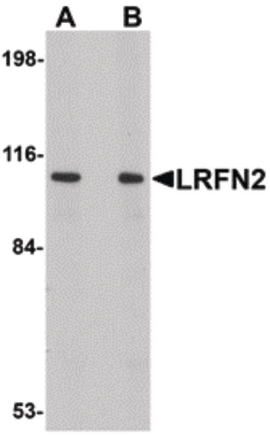 LRFN2 Antibody (PA5-20705) in Western Blot