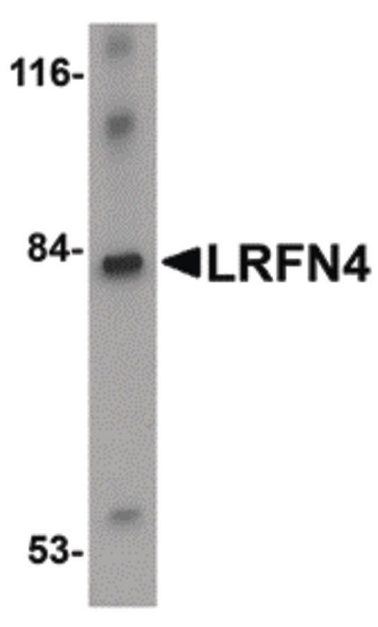 LRFN4 Antibody (PA5-20699) in Western Blot