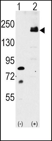 LRP6 Antibody (PA5-13145) in Western Blot