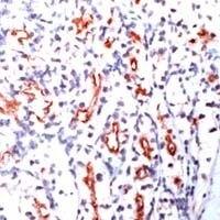 CD205 Antibody (MA1-38550) in Immunohistochemistry