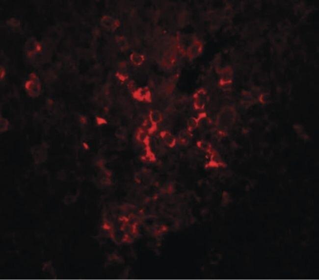 LZTR2 Antibody (PA5-20903) in Immunofluorescence