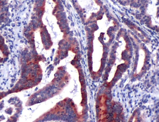 NGAL Antibody (PA5-32476)