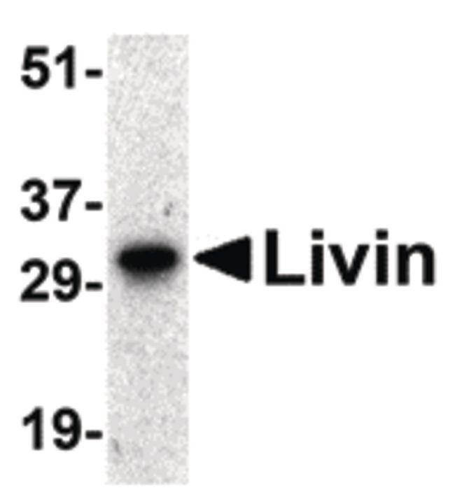 Livin Antibody (PA5-19990) in Western Blot