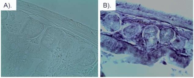 mCherry Antibody (M11217) in Immunofluorescence