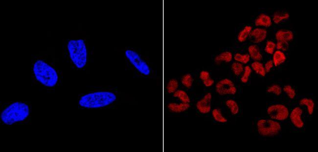SOX2 Antibody (MA1-014-D550) in Immunofluorescence